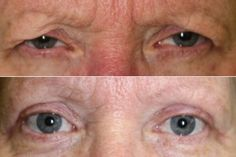 What does an upper blepharoplasty look like after surgery? Dr. John Burroughs, Colorado Springs Plastic Eye Surgeon, shares a result.  John R. Burroughs, MD PC http://www.drjohnburroughs.com Surgery of the Eyelids and Face 719-473-8801 Colorado Springs, Canon City, Pueblo