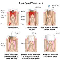 #Root #Canal #Treatment procedure in south delhi india, www.dental-delhi.com
