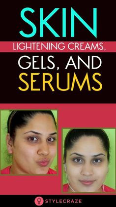 we have compiled 10 of the best skin lightening creams, gels, and serums available in the market that work wonders in replenishing your los. Best Skin Lightening Cream, Routine, Homemade Acne Treatment, Lighten Skin, Homemade Skin Care, Skin Cream, Anti Aging Skin Care, Good Skin, Healthy Skin