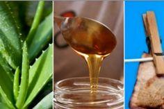 6 aliments pour apaiser rapidement les démangeaisons dues aux piqûres d'insectes