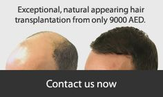Hair Transplant Surgery, Hair Restoration, Dubai, Medical, The Unit, Medical Doctor, Medicine, Med School, Medical Technology
