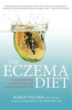 Eczema-safe food to stop the itch and prevent eczema for life - The Eczema Diet
