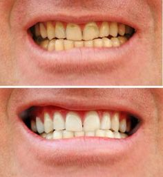 cavities, clean away yellow tartar, and seal damaged teeth. All without visiting Teeth Whitening Cost, Natural Teeth Whitening, Smile Care, Tartar Removal, Dental Check Up, Dental Photography, Tooth Enamel, Perfect Teeth, Tooth Sensitivity