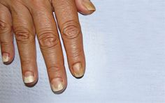 Read our post on From Tips to Toes, a blog by Barielle---Your Nails and Your Health