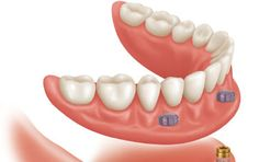 Partial Dentures Reservoir — The team at Impressions Dental Studio offers partial dentures, which are an option when some natural teeth are remaining. Missing Teeth, Tooth, Dental, Stuff To Buy, Teeth, Dental Health