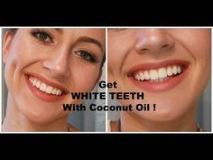 Viral Alternative News: Whiten your teeth, get rid of bad breath, tartar, and plaque with just one ingredient!