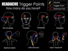 Trigger point therapy in Las Vegas