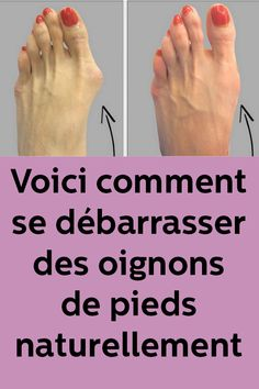 Here's how to get rid of feet onions naturally Health Tips, Health Care, Cat Health, Fitness Tips, Health Fitness, Dark Spots On Skin, Beauty Spa, Acupressure, Science And Nature
