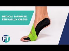 hallux valgus tapen   Medical Taping   FysioTape - YouTube Tape, Youtube, Medicine, Bunion, Youtubers, Band, Youtube Movies, Ice
