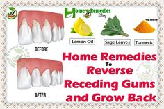 9 Home Remedies To Reverse Receding Gums & Grow It Back *** Get a free blackhead mask, link in bio! BeautyCharcoal Previous Post Next Post Gum Health, Oral Health, Dental Health, Dental Care, Health Tips, Health Care, Teeth Health, Gum Disease Treatment, G Strings