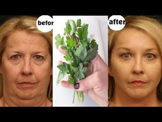 Japanese secret to looking 10 years younger than your age/anti aging remedy to remove wrinkles - YouTube Wrinkle Remover, Youtube, 10 Years, Anti Aging, Beauty Hacks, That Look, How To Remove, Japanese, Beauty Cream