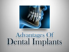 - Implanted teeth can last for many decades - Implants protect and stimulate the jaw bone - Implanted teeth are easy to clean and maintain - Implanted teeth restore chewing efficiency - Implanted teeth protect the neighboring teeth from gum disease and tooth decay