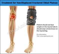 10 Best Broken Tibial Plateau Images Tibial Plateau Fracture Plateau Knee Injury