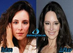 Madeleine Stowe Botox Injection | http://plasticsurgeryfact.com/madeleine-stowe-plastic-surgery-before-and-after-photos/