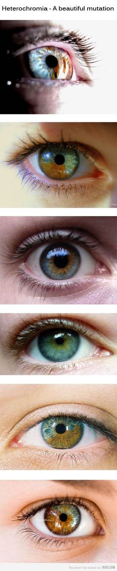 I have central heterochromia and one eye also has sectoral heterochromia (my blue spot). Didn't know that wasn't normal until adulthood. Think picture 3 and 5 here. Eye Color Facts, Eye Facts, Eye Pictures, Cool Pictures, Pretty Eyes, Cool Eyes, 2 Colored Eyes, Beautiful Eyes Pics, Eye Color Changer