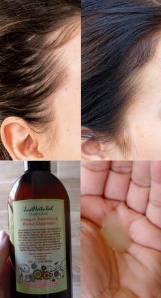 My hair was really thick and full. I was visiting the stylist often to cut the excess of my hair because it was too difficult to comb it.  I don't know how or when but I started to lose my hair.  I could begin to see my scalp through the hair that I had left. After I used this vinegar nutritive rinse, my hair was born again like it was before -thick and full! My hair is beautiful!
