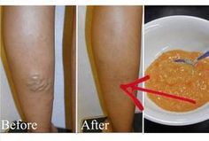 How To Make A Homemade Paste To Treat Your Varicose Veins?