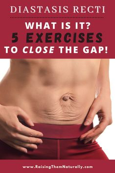 Have you recently given birth? Or maybe you're 6 months postpartum but your tummy is still bulging out? It could be a muscle separation issue called- Diastasis Recti. Learn about the best 5 Diastasis Recti Exercises that actually work! #Postpartum #PostpartumHealth #WomensHealth #DiastasisRecti #AbSeperation #AbWorkout #AtHomeExercises Muscle Separation, Diastasis Recti Exercises, Free Mom, Postpartum Care, Pre Pregnancy, Happy Mom, Parenting Hacks, 6 Months, Birth