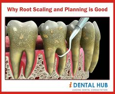 Roots Dental And Smooth On Pinterest