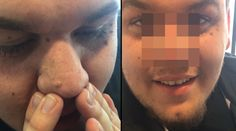 ​This Man's Blackhead Removal Technique Is A Complete And Utter Gamechanger Les Rides, Blackhead Remover, See On Tv, Almost Always, This Man, Beauty Hacks, Skin Care, Nutrition, Internet