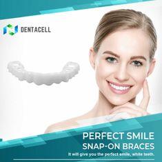 MAGIC Teeth Brace - Bigsuprise Perfect Smile Teeth, Types Of Braces, Veneers Teeth, Teeth Shape, Teeth Braces, Braces Smile, Dental Braces, Stained Teeth, White Teeth