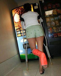 SLC orange Broken leg/Cast Arm Cast, Broken Foot, Body Cast, Short Legs, Crutches, Sprain, Slc, Quad, Ankle