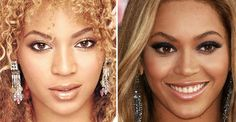 plastic surgery before and after | Beyonce Knowles Before & After Plastic Surgery