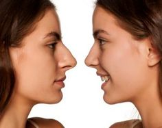 Rhinoplasty in Indore is a surgical procedure but it is not painful like other surgical operations. the total time of recovery period depends on the health condition of the patient, efficiency of the surgeon etc. Hair Loss Clinic, Nose Reshaping, Rhinoplasty Surgery, Having Patience, Recovery, Conditioner, Health, Indore, Period