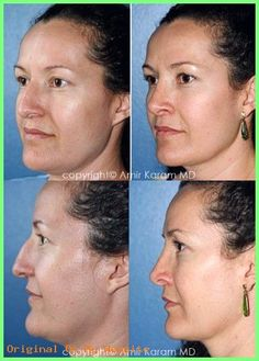 Considering a nose job? Rhinoplasty is a common procedure for Dr Amir Karam of Carmel Valley Facial Plastic Surgery in San Diego. Rhinoplasty Before And After, Plastic Surgery, Blog, Facial, Goals, Facial Treatment, Facial Care, Blogging