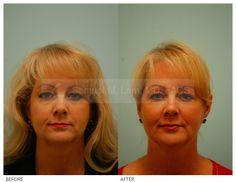 Skin Resurfacing - Skin Resurfacing Procedure Photos By Dr Samuel Lam Plastic Surgery Photos, Fat Transfer, Skin Resurfacing, Facial Rejuvenation, Surgery Center, Chemical Peel, Your Skin, Photo Galleries, Face