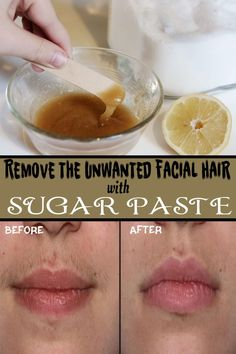 Remove the Unwanted Facial Hair with Sugar Paste