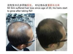 Are you suffering from unwanted hair loss? Then click this to find out what has helped this man! Nu Skin Ageloc, Age 20's, Anti Aging Supplements, Grow Hair, Hair Growing, Hair Starting, Unwanted Hair, 30 Years Old, Skin Cream