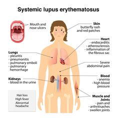 Lupus: Causes, Symptoms and Research