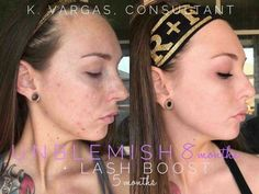 Wanting a beautiful complexion is NOT vanity!   It is ABSOUTELY acceptable to want to take care of yourself. Unblemish can be that pivotal point in your confidence and self esteem!! 🙌