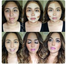 9 Best Scaring images | Hypertrophic scar treatment, Acne remedies