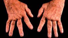 Un evento que sorprendió a gran parte de la población mundial fueel anuncio que realizó el Dr. Stephen Sinatra al publicar una cura natural para la artritis sin necesidad deutilizar ningún tipo de drogas, y por primera vez la única que no consta de una cirugía que remplace la articulación para la artritis. Anuncios Seguro …
