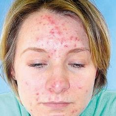 Medications For Treating Acne