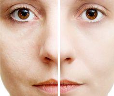 acne hos voksne