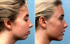 Cheek Implants Before And After | See Additional Chin Surgery Before & After Photos