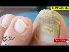 Remoja los pies en esta mezcla por 10 minutos y elimina los hongos de tus uñas y pies para siempre - YouTube