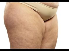 Cellulite Home Remedies That Work Like A Charm   The WHOot