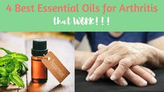Watch This Video Proven Homemade Remedies for Arthritis and Joint Pain Ideas. Staggering Homemade Remedies for Arthritis and Joint Pain Ideas. Arthritis Hands, Yoga For Arthritis, Natural Remedies For Arthritis, Rheumatoid Arthritis Treatment, Psoriasis Remedies, Types Of Arthritis, Essential Oils For Colds, Oil Recipe, Manta Ray