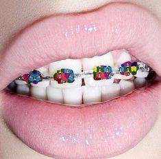 Liked Media - Pikore Dental Braces, Teeth Braces, Glitter Slime, Glitter Nail Art, Patrizia Pepe, Rainbow Braces, Cute Braces Colors, Braces Tips, Taste The Rainbow