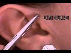 Como Adelgazar Con Acupuntura, Homeopatia Y Dieta En Bogota P 2 - YouTube