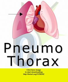 Pnuemothorax, iphone, ipad, ipod touch, itouch, itunes, appstore, torrent, downloads, rapidshare, megaupload, fileserve