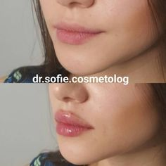 Hyaloron Pen Lip augmentation Ladder Safety Tips Using the Little Giant Ladder We all know that do i Dermal Fillers Lips, Facial Fillers, Botox Fillers, Lip Fillers, Juviderm Lips, Botox Lips, Natural Lip Plumper, Natural Lips, Hyaluron Filler