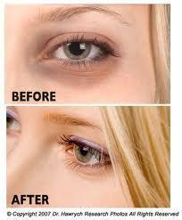 Dark circles under eyes, Dark Eye Circles « Health Anti-aging Wellness