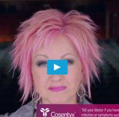 Cyndi Lauper, Cosentyx, hair cut