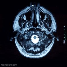 IRM: une facon de visualiser les differentes couches/palliers d'un objet via GIPHY
