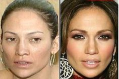 Celebrity Lifestyle Secrets: Doctor S On Anti-Aging Treament